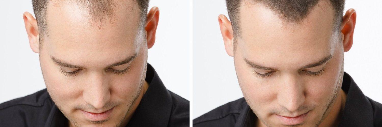 3 méthodes efficaces pour favoriser la repousse des cheveux