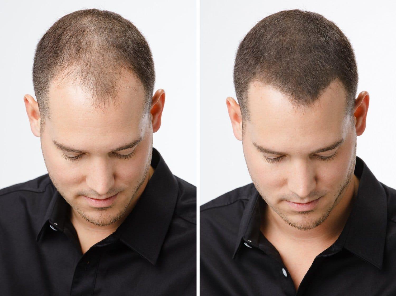 repouse cheveux